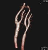造影3DCT(頸部血管)